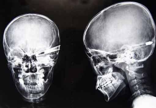 Предметы, которые жили в человеческом теле