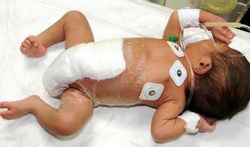 Шестиногому младенцу удалили лишние конечности
