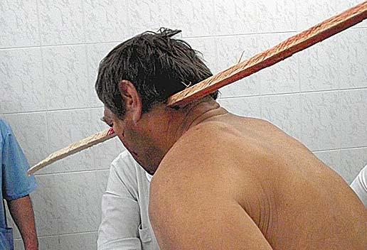 Врачи спасли мужчину с двухметровой рейкой в голове