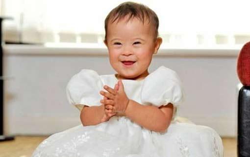 Британская малышка с синдромом Дауна стала знаменитой