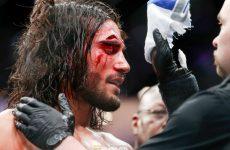Элиас Теодороу — Даниэль Келли 18.11.2017: прогноз на бой UFC Fight Night 121
