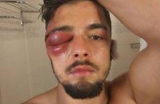 Энтони Йигит продемонстрировал последствия боя с Иваном Баранчиком