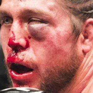 Брайан Ортега показал состояние своего лица спустя 10 дней после безумного поединка против Холлоуэйя