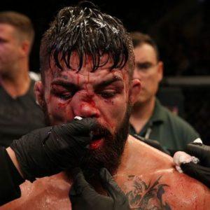Медицинские отстранения после турнира UFC Fight Night 156