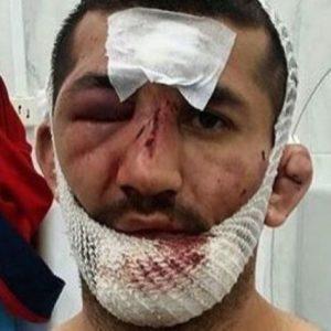 В Сети всплыло видео жестокого избиения Расула Мирзаева сторонниками Хабиба Нурмагомедова в 2016 году